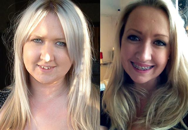 Face change after braces